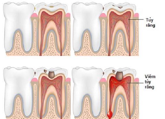 viêm tủy răng ở trẻ em, điều trị viêm tủy răng ở trẻ em, bệnh viêm tủy răng ở trẻ em, cách điều trị viêm tủy răng ở trẻ em, viêm tủy răng ở trẻ, viêm tủy răng ở trẻ nhỏ, Viêm tủy răng ở trẻ, trẻ bị viêm tủy răng, viêm tủy răng trẻ em, viêm tủy răng ở trẻ nhỏ, viêm tủy răng sữa ở trẻ, viêm tủy răng sữa, cách điều trị viêm tủy răng