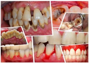 cao răng huyết thanh,cao răng huyết thanh là gì,sự hình thành cao răng,vôi răng huyết thanh,cao răng huyết thanh và cao răng nước bọt