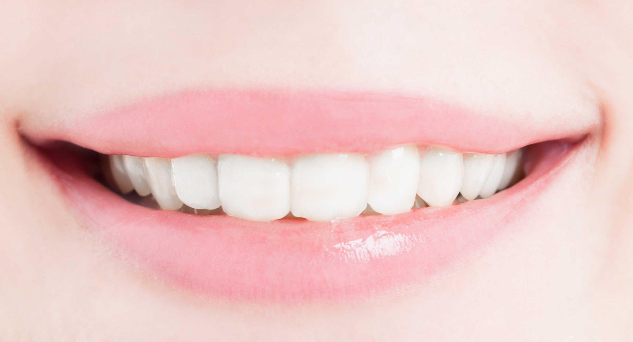Review thuốc tẩy trắng răng nite white có tốt không, thuốc tẩy trắng răng nite white có tốt không, Review thuốc tẩy trắng răng nite white, thuốc tẩy trắng răng nite white, thuốc tẩy trắng răng zoom nite white 22, thuốc tẩy trắng răng tại nhà nite white, tẩy trắng răng nite white