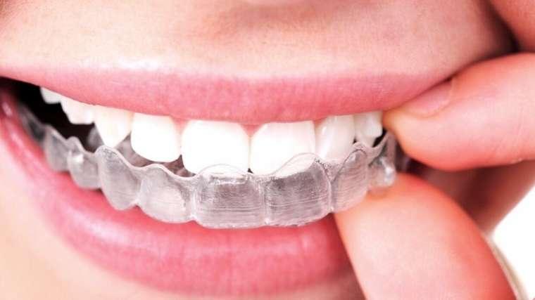 review kem tẩy trắng răng bravo, kem tẩy trắng răng bravor review, thuốc tẩy trắng răng tại nhà bravo, Review thuốc tẩy trắng răng bravo, Thuốc tẩy trắng răng bravo, Thuốc tẩy trắng răng bravo có tốt không